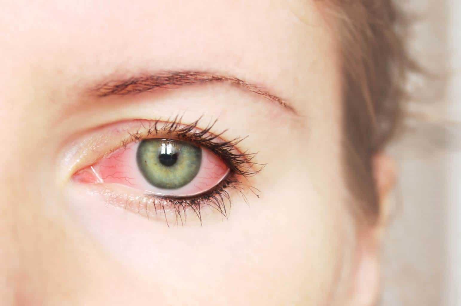 Первым признаком глазного давления это его покраснение