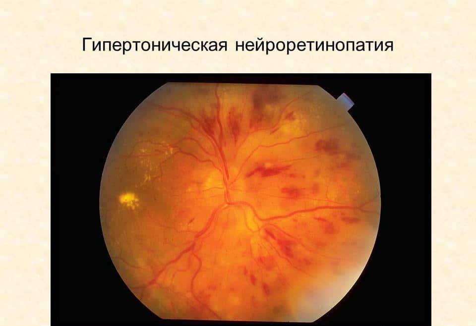 Фото глазного дна при гипертонической нейроретинопатии