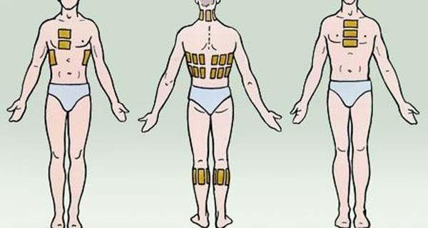 Они ставятся на затылок, шею плечи, икроножные мышцы