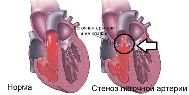 Регулируется повышенное давление рецепторами стенки сосудов, ветками блуждающего нерва и симпатическим нервом