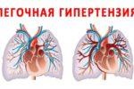 Какое давление в легочной артерии является нормой?