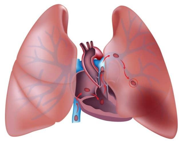 Вследствие возрастания давления в артерии легких повышается нагрузка на правое предсердие, что часто приводит к нарушениям функций сердца