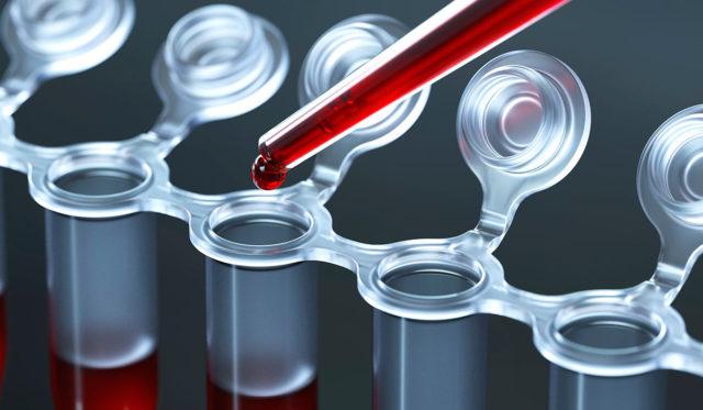 Информация, полученная при помощи различных методов клинической лабораторной диагностики, отражает течение заболевания на органном, клеточном и молекулярном уровнях