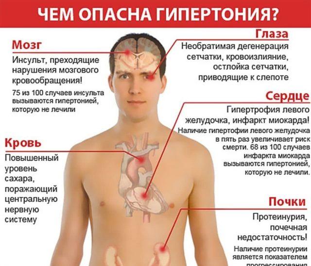 приводит к серьезным осложнениям в виде: инфаркта миокарда, расслоения аорты
