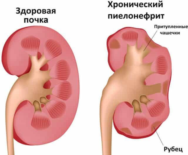 Давление при пиелонефрите является симптоматическим