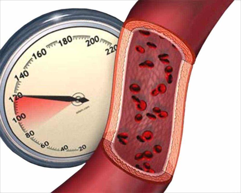 Гипертония - это какое давление?