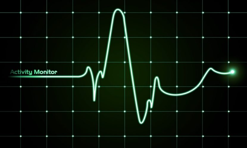 Сильное сердцебиение при нормальном давлении: почему и что делать?