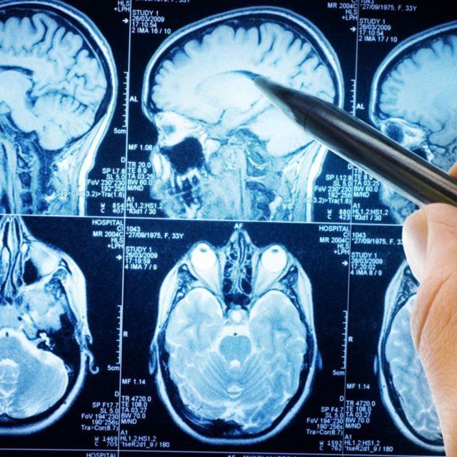 Церебральный гипертонический криз — причины, виды, метод лечения